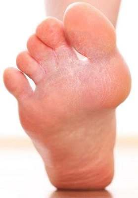 Can You Inherit Athlete's Foot?