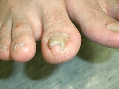 Ringworm Risks