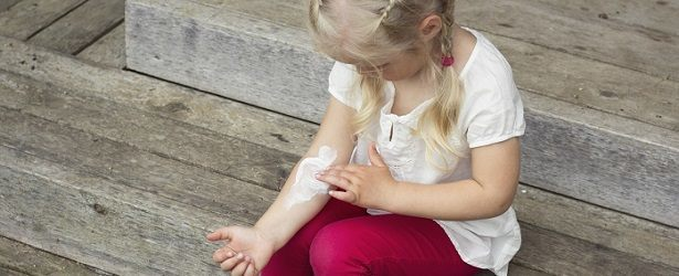 Natural Remedies for a Fungal Skin Infection in a Child